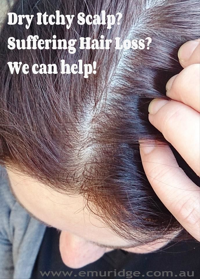 Too much of what vitamin causes hair loss